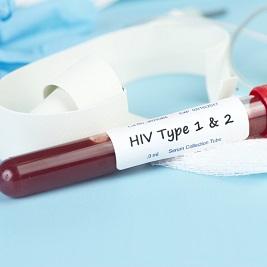 HIV Incidence Provincial Surveillance System (HIPSS)